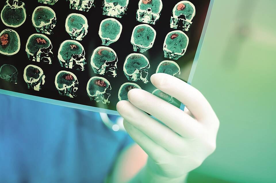 Röntgenbild Hirntumor