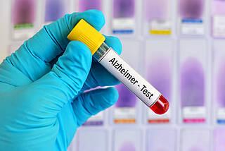 Alzheimer-Test, alzheimer-bluttest, alzheimer-früherkennung
