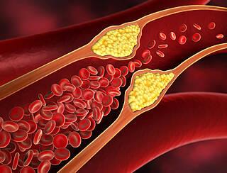 Eine subklinische Hypothyreose begünstigt Gefäßverengungen