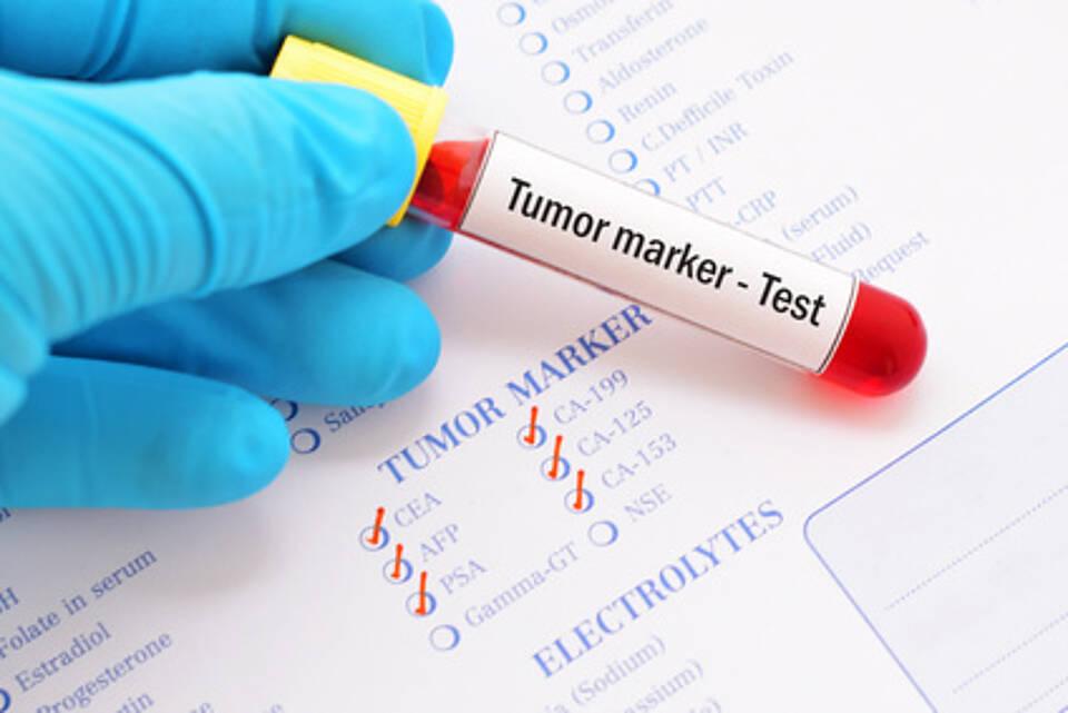 Viel hilft viel: Patientinnen mit triple-Negativem Mammakarzinom leben länger, wenn bestimmte Immunzellen in ihren Tumor eingewandert sind