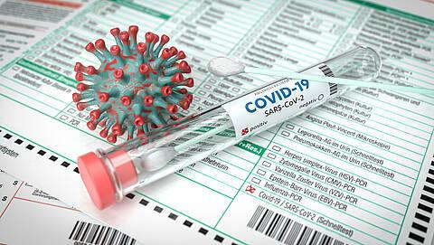 Teile des Virus können im menschlichen Erbgut verbleiben. Eine Folge könnte Long Covid sein