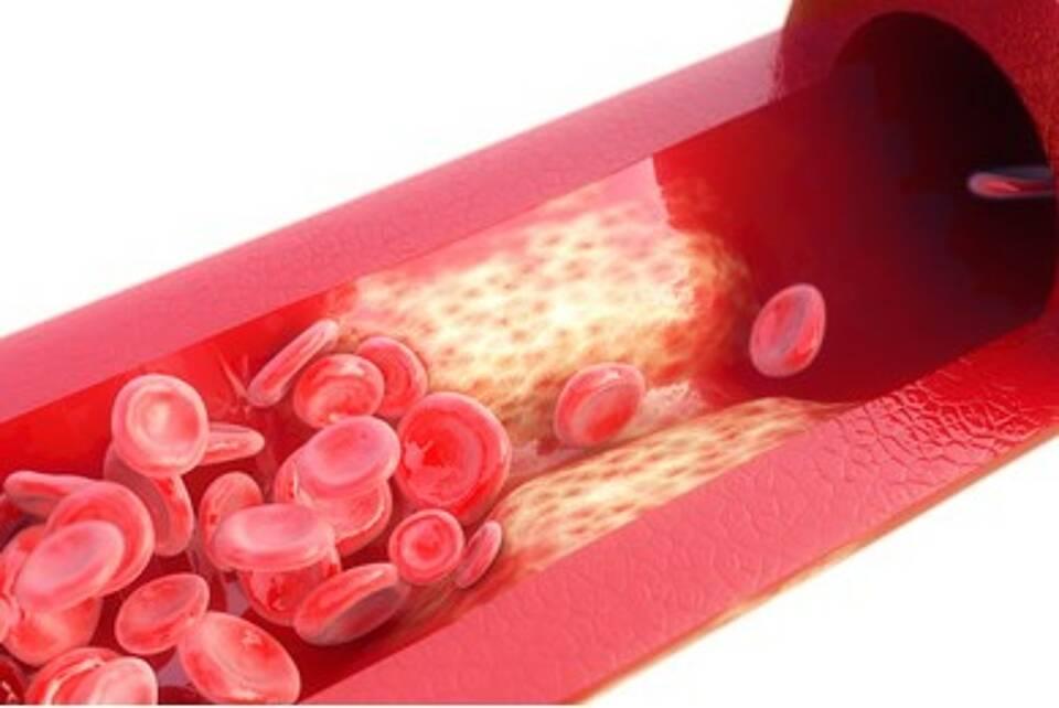 Entzündungen, Inlamm-Aging, Alterungsprozesse, alterstypische Erkrankungen, Arteriosklerose