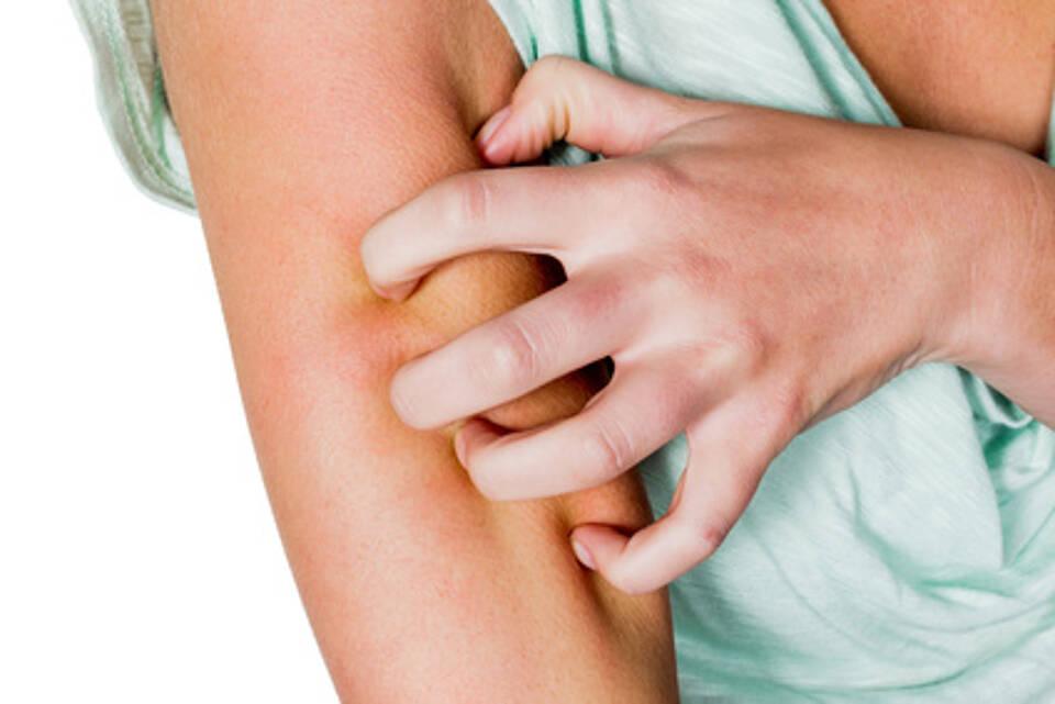 Sonnenallergie oder Hitzepickel? Hautausschläge im Sommer abklären lassen.