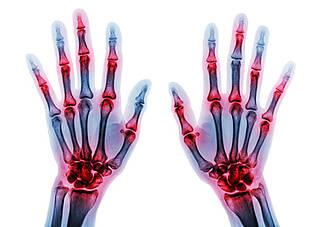 Forscher haben einen zentralen immunologischen Mechanismus zur Auflösung von Entzündungen entdeckt und damit die chronische Entzündungsreaktion bei rheumatoider Arthritis erklären können