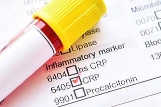 Bluttest, Entzündungsmarker, hsCRP