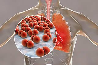 Lungenentzündung Pneumokokken Grafik