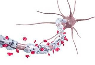 Zusammenhang zwischen Stress und MS