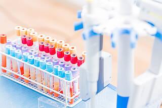 Wie verbreitet ist die englische und südafrikanische Virusvariante in Berlin? Charité und Vivantes untersuchen jetzt systematisch positive Patientenproben auf die beiden Mutationen