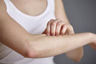 Bie Neurodermitis ist die Hautbarriere beschädigt