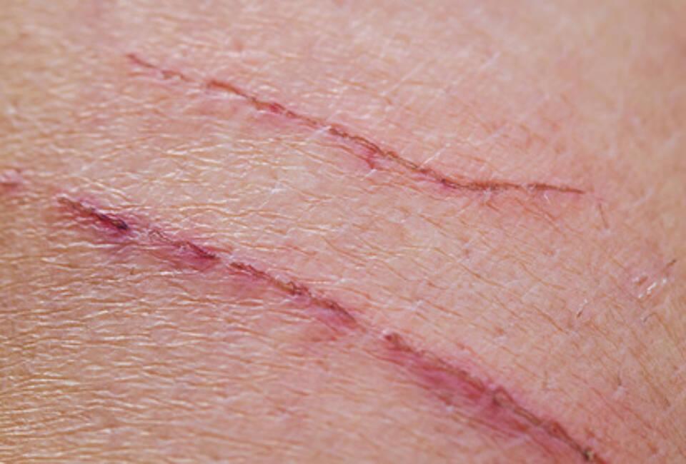 Hautwunde, Hautverletzung, Gliazellen, Nervenzellen