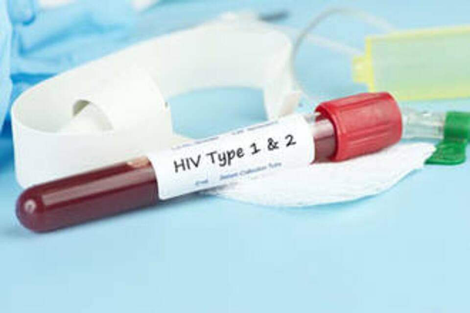 Weltweit sind die HIV-Neuinfektionen seit 2010 um 16 Prozent gesunken. Europa trotz diesem Trend