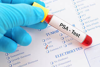 PSA-Test