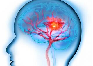 Seltener Hirnblutungen unter Dabigatran