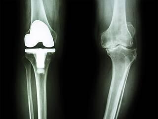 Wieviele Komplikationen treten nach dem Einsatz eines künstlichen Kniegelenks auf? Ein neues Verfahren gibt Antworten