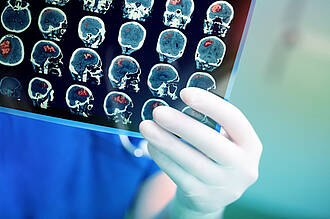 Guter Ausblick für die Hirntumortherapie: Hirntumorexperten wie Prof. Peter Vajkoczy von der Charité versprechen effektivere und präzisere Behandlungsmöglichkeiten in absehbarer Zeit