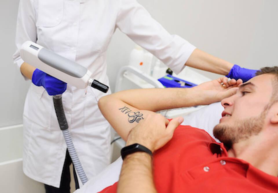 tattoo entfernen, laser, tätowierung entfernen