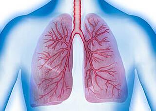 Lungenhochdruck, neues Medikament