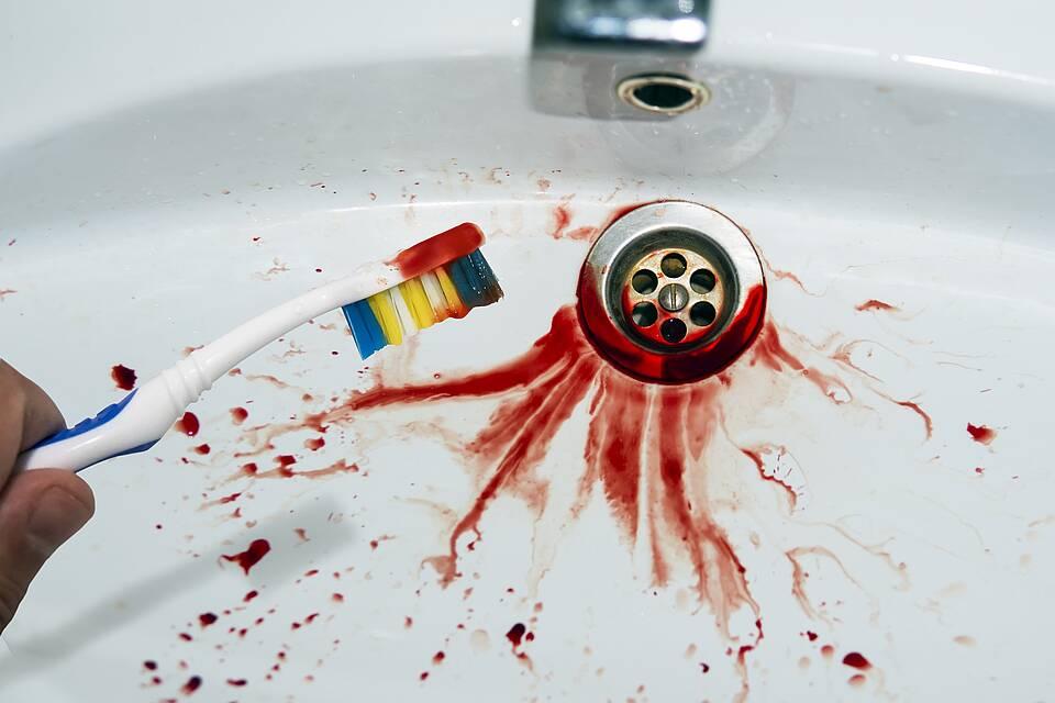 Zahnfleischbluten - sichtbar im Waschbecken beim Zähneputzen.