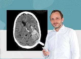 Andreas Tiede von der MHH hat Patienten mit Sinusvenenthrombose behandelt. Der weiße Pfeil auf dem CT-Bild deutet auf thrombotische Ereignis im Gehirn einer Patientin