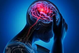 Kopfschmerzen: Mögliches Zeichen für Hirnvenenthrombose nach einer Covid-19-Impfung.
