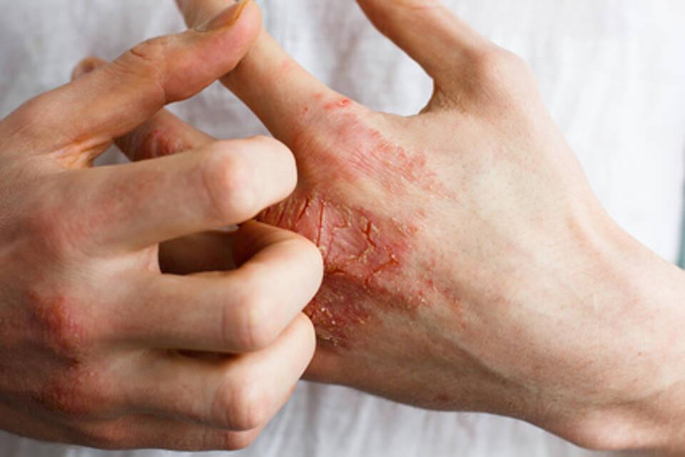 psoriasis, schuppenflechte, hauterkrankung, juckreiz, dermatologie