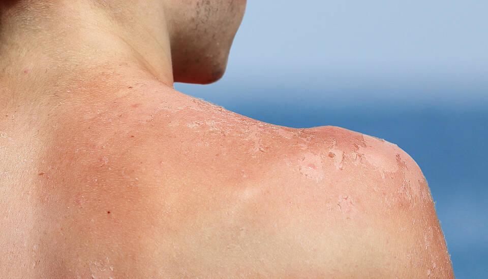 Bestimmte Blutdrucksenker erhöhen Lichtempfindlichkeit der Haut