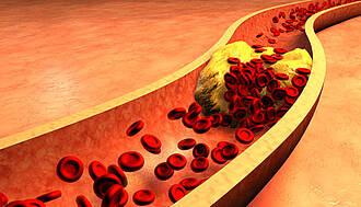 Blutfette begünstigen Ablagerungen an den Arterienwänden