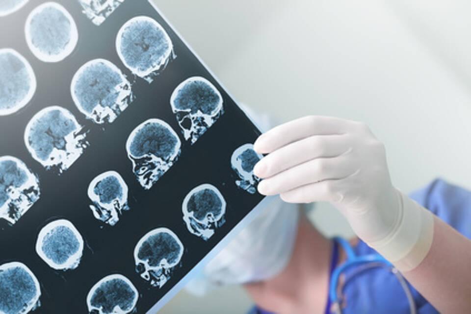 Elektroenzephalografie (EEG) des Gehirns
