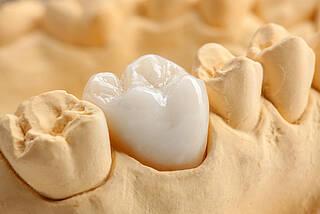 Keramik, Krone, Implantat, Zahnersatz