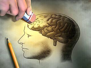 Immuntherapie bei Alzheimer gescheitert