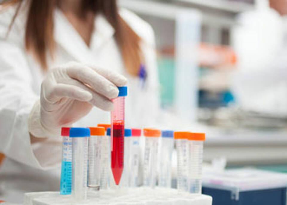 Immuntherapie oder Tumorstammzelltherapie? Was Hirntumorexperten in der Pipeline haben
