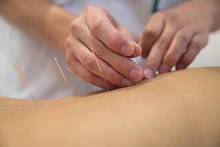 Akupunktur kann gegen Schmerzen lindern