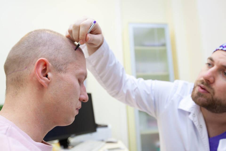 Haarausfall lässt sich möglicherweise mit einer Stammzelltherapie besiegen