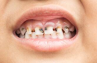 Kindermund mit deutlich sichtbarer Karies an den Frontzähnen