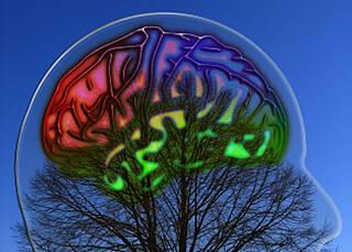 Eine Einengung der Blutgefässe im Gehirn kann zum Schlaganfall führen