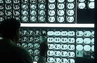Langzeitüberleben, Eierstockkrebs