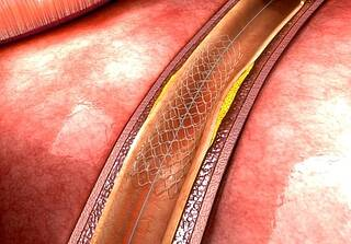 Gefäßprothese bei Aortenaneurysma