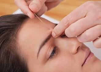 Akupunktur bei Arthrose