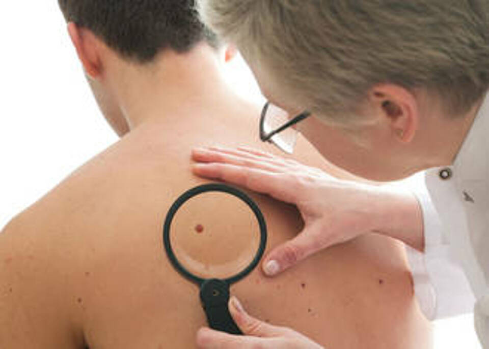 Gutachten zweifelt am Nutzen des Hautkrebs-Screenings