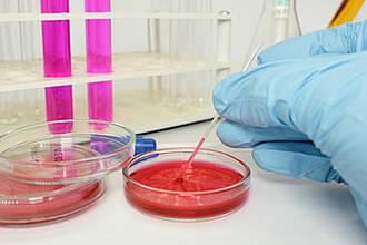 Medizinische Labordiagnostik, Hand im blauen Gummihandschuh, Petrischale