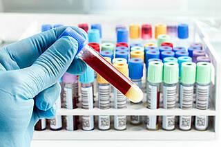 Der Biomarker CA 125 eignet sich offenbar auch zur Früherkennung von Eierstockkrebs. Ein regelmäßiger Bluttest ist erforderlich