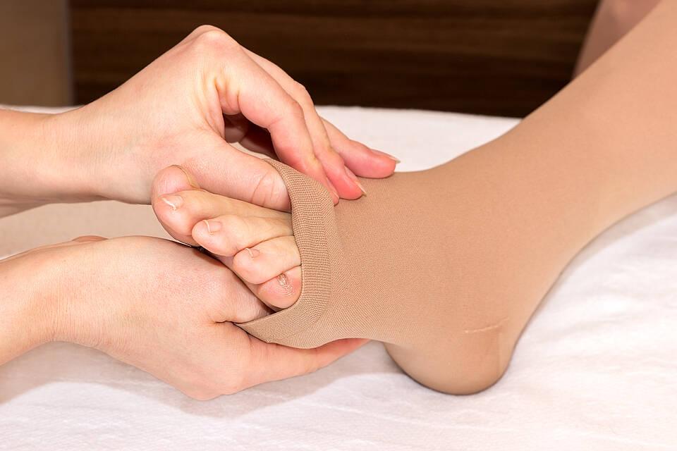 Die Kompressionstherapie gehört zu den wirksamen Therapien bei Lymphödem