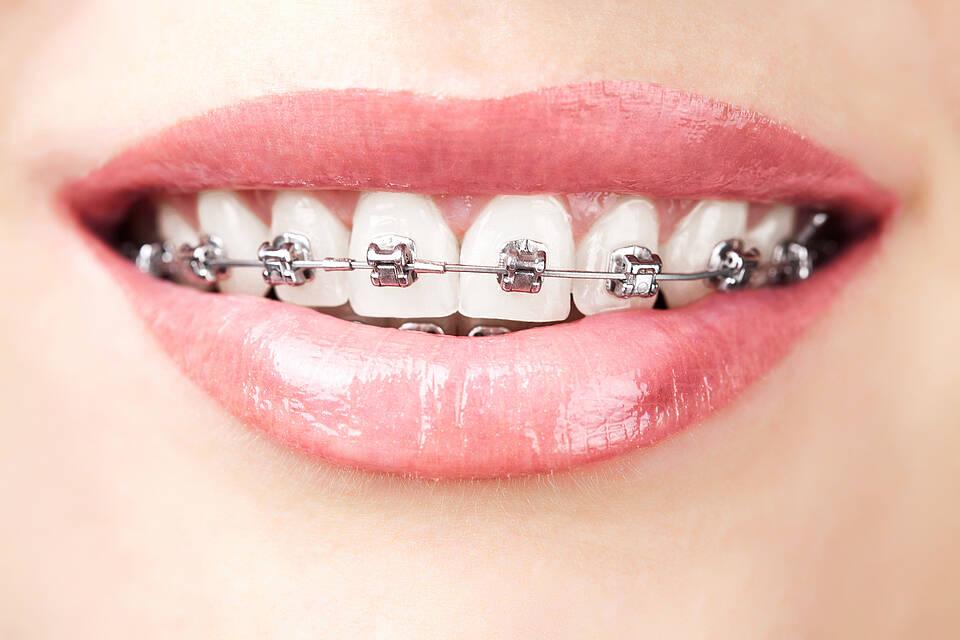 Brackets, feste Zahnspange, Kieferorthopädie