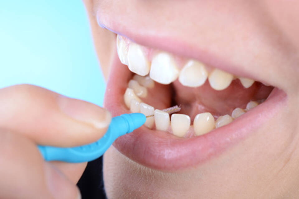 Parodontitis-Prävention