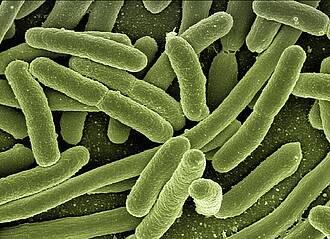 Pseudomonas aeruginosa ist ein pathogener Krankenhauskeim: Ein Pathblocker gegen Lungeninfektionen könnte ihn bald unschädlich machen