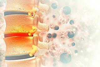 Knochenkrebs trifft häufig junge Menschen. Bioaktive Gläser machen Hoffnung auf neue Behandlungsmöglichkeiten
