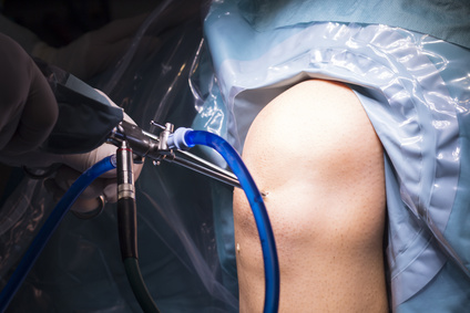 Meniskus, Meniskus-OP, Meniskektomie, Meniskusriss, Operation