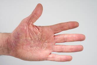 Menschen mit Neurodermitis und Schuppenflechte präziser behandeln