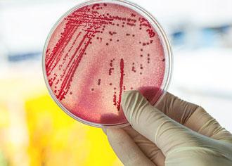 Forscher wollen alte Antbiotika re-aktivieren