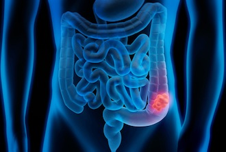 Koloskopien zeigen immer zuverlässiger Polypen und Darmkrebswucherungen.